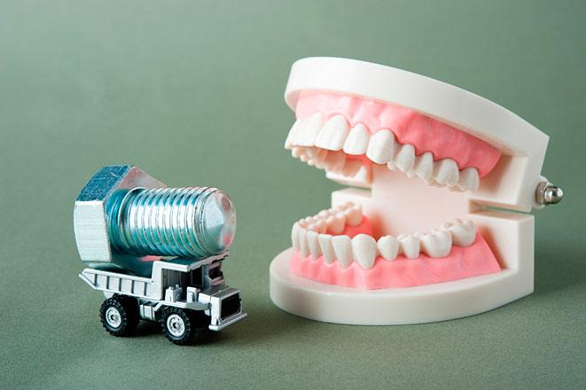 Особенности гигиены рта при имплантации зубов