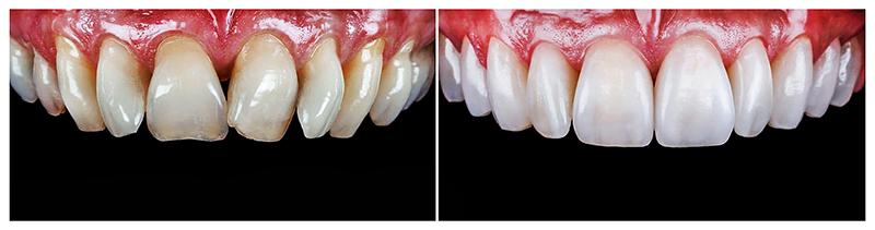 Временные съемные виниры на зубы